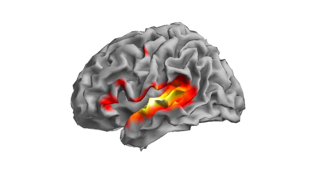Abbild eines Gehirnscans