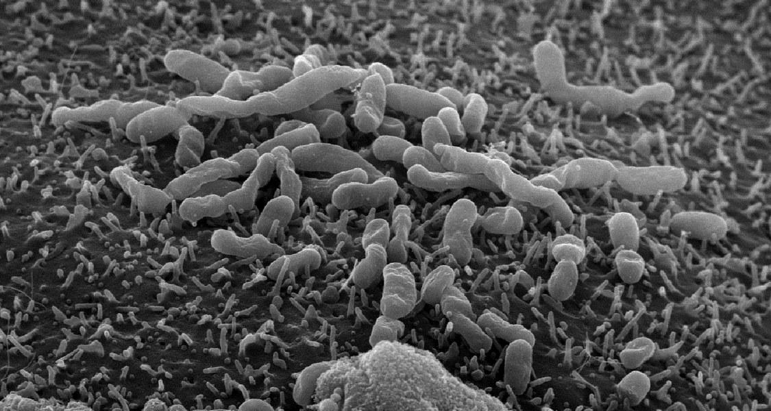 Abbildung des Bakteriums Orientia tsutsugamushi