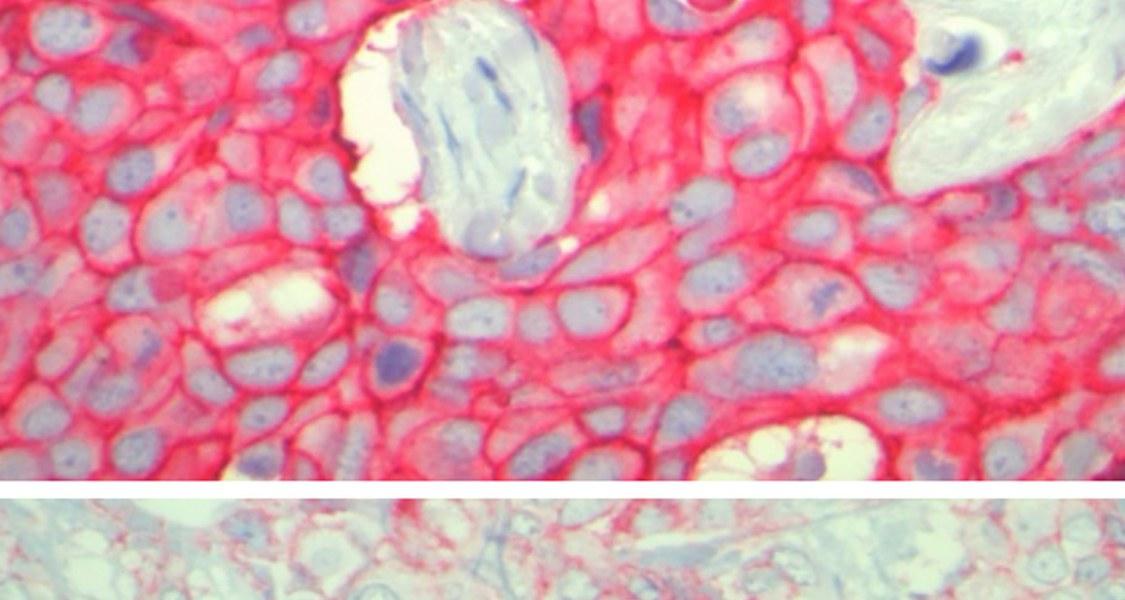 Zu grell ist gar nicht nötig: Der Tumor im Bild oben weist sehr große Mengen des HER2-Proteins auf. Die Ergebnisse der Marburger Arbeitsgruppe zeigen, dass auch eine geringere Menge von HER2 – wie auf dem Bild unten – für das Ansprechen auf Therapien von Bedeutung ist.  Fotos: Carsten Denkert
