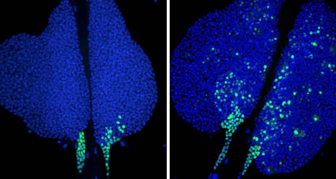 Fehlt in Zellen von Fruchtfliegenlarven ein Teil des NuRD-Komplexes, so wird in weiten Bereichen der Lymphdrüse ein Gen angeschaltet, das zur Zelldifferenzierung beiträgt (rechts). In normalen Larven (links) ist das Gen nur in einem kleinen Bereich aktiv. Jede Zelle ist mit einem blauen Farbstoff markiert, ein grünes Signal zeigt die Aktivität des differenzierungsrelevanten Gens an.