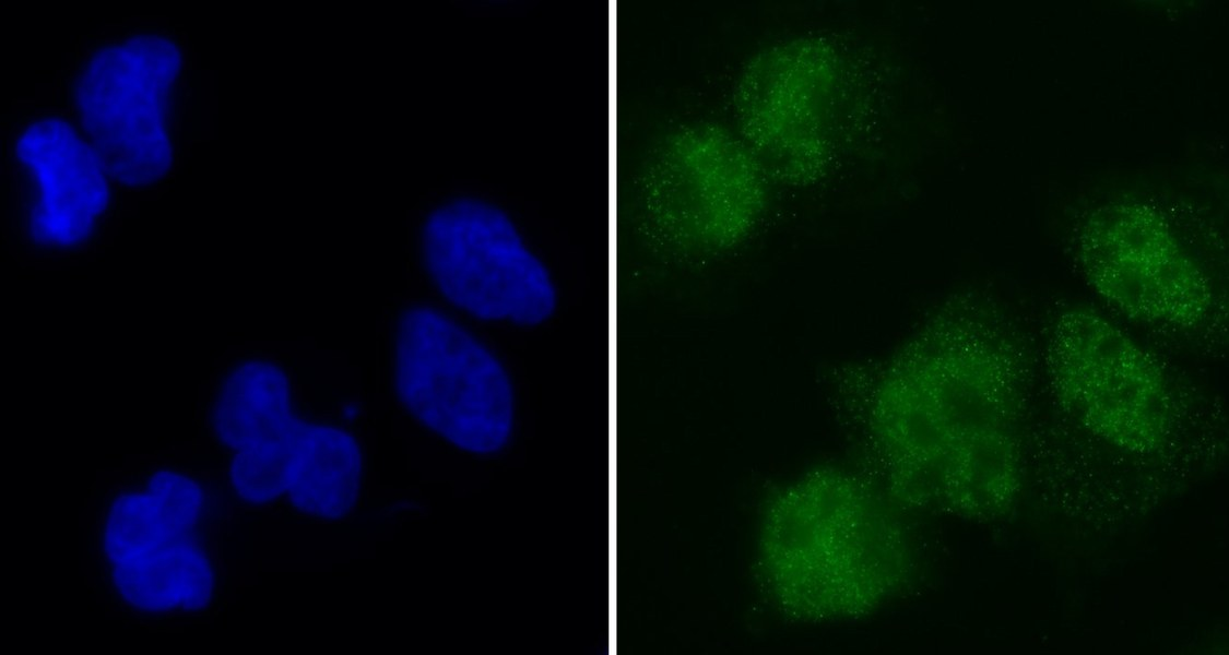 Reif durch die Insel: Wie Färbeexperimente zeigen, befindet sich SAMD1 (grün) in den Kernen (blau) von Säugetierzellen. Dort koppelt es an CG-Inseln, was die Reifung von Stammzellen beeinflussen kann. Fotos: Clara Simon