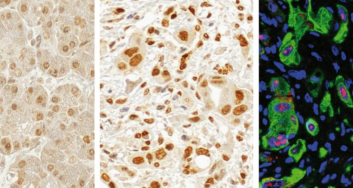 Die Mehrzahl der Bauchspeicheldrüsentumore weist einen höheren Gehalt des Enzyms PRMT1 auf (mittleres Bild) als krebsfreies Gewebe des Organs (Bild links), wie die Intensität der Braunfärbung zeigt. Zusammen mit dem Krebshemmer p14ARF (rot gefärbt) im Tumorgewebe wirkt sich PRMT1 günstig auf den Therapieerfolg und die Langzeitprognose aus.