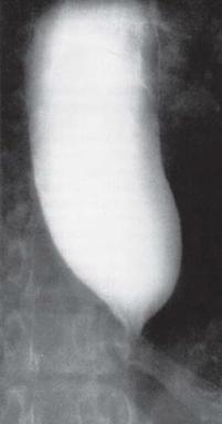 Megaoesophagus