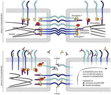 Autoantibody effects on binding properties of desmosomal cadherins by AFM-studies